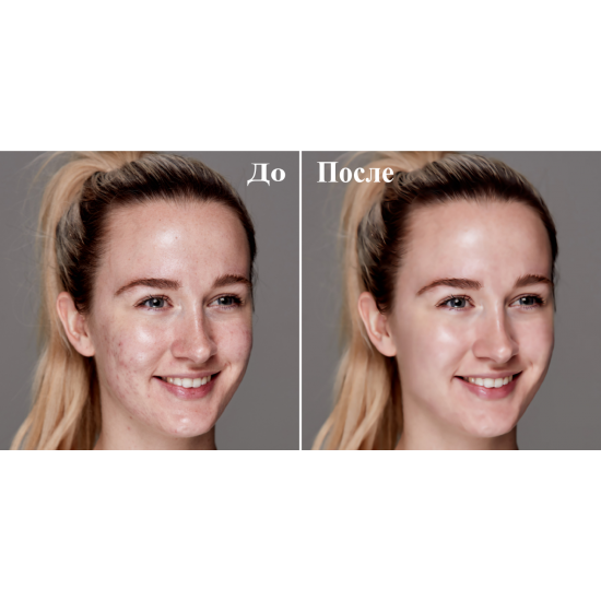 Удаление дефектов на фото